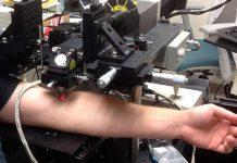 Българин с уникален пробив: Лазер засича и унищожава в реално време раковите клетки циркулиращи в кръвта