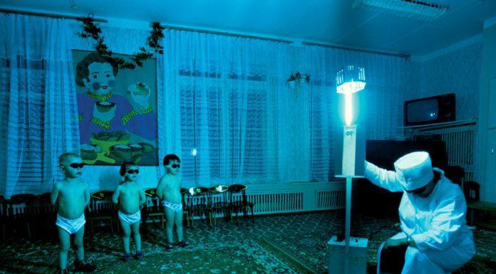 Когато лекарите предписваха UV светлина на децата